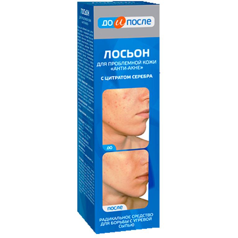 До и После Лосьон Анти-Акне для проблемной кожи с цитратом серебра от угревой сыпи 200мл